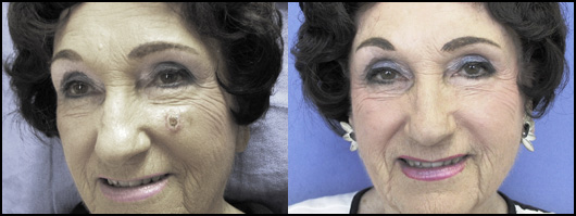 Facial Skin Cancer Moh's Reconstruction